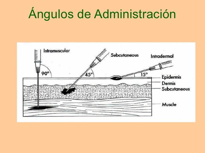Salud: 4 Tipos y formas de dar inyecciones